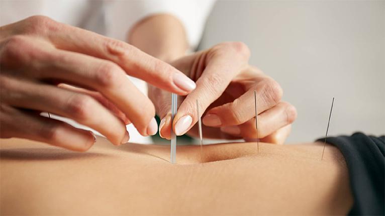 Maternité de Longjumeau - Acupuncture et grossesse